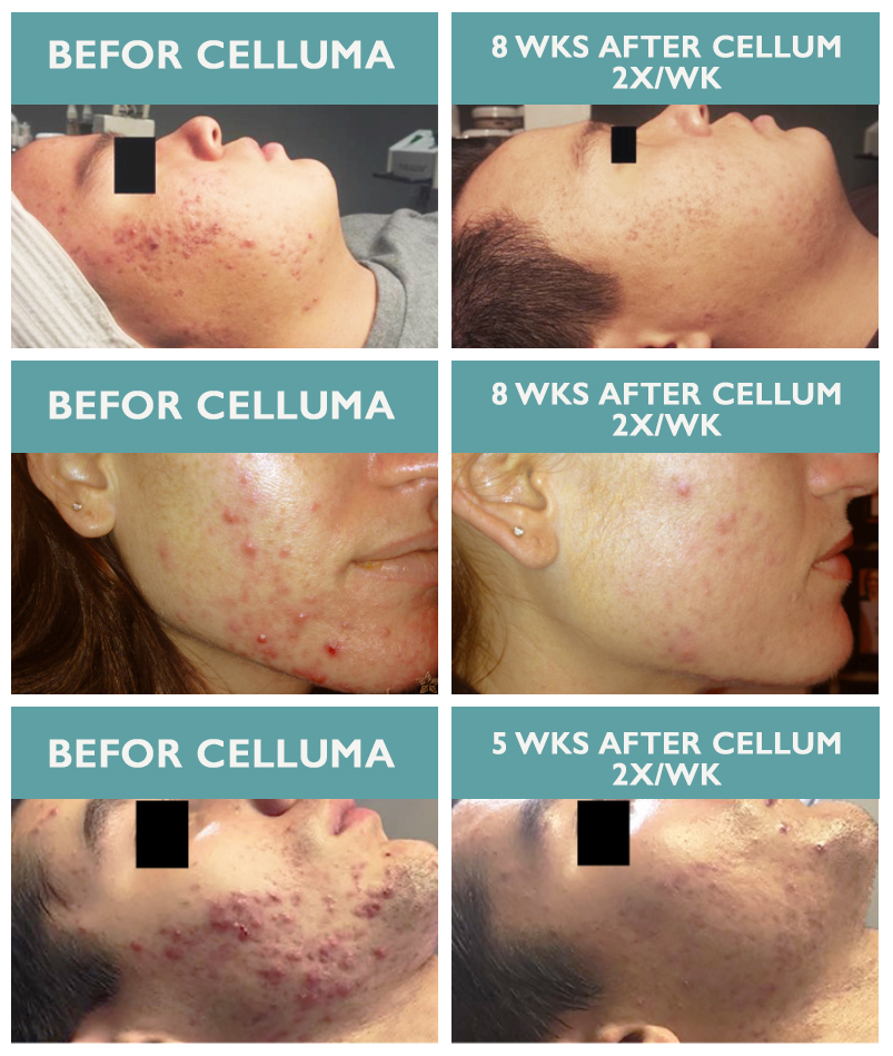 Haven_Celluma_Acne